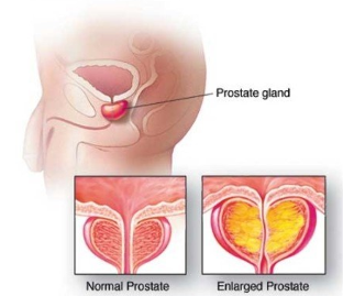 The Normal and the inflamed prostate gland